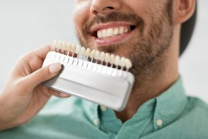A man is comparing his natural teeth to swatches to create custom dental crowns for your dental implants.